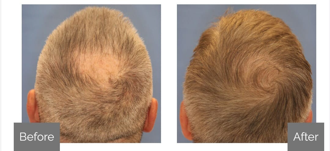 Hair Loss Moncton Before After