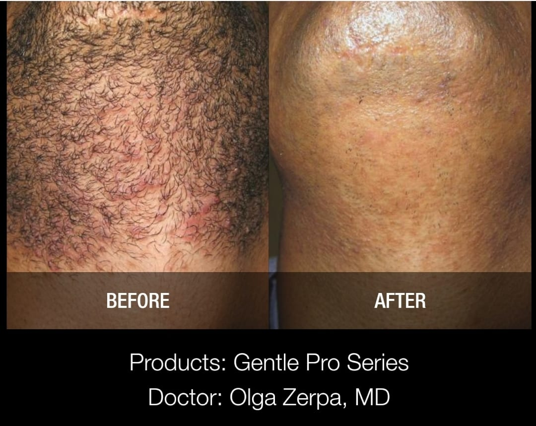 Laser Hair removal Moncton Before & After 3