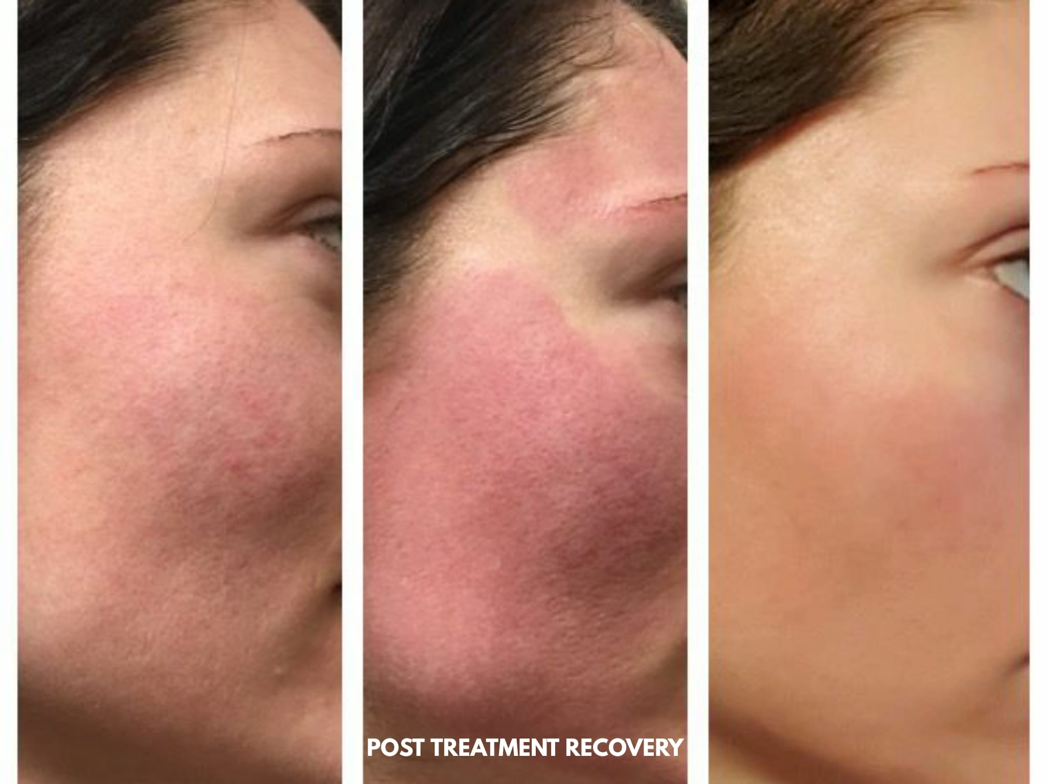 Microneedling Post Treatment